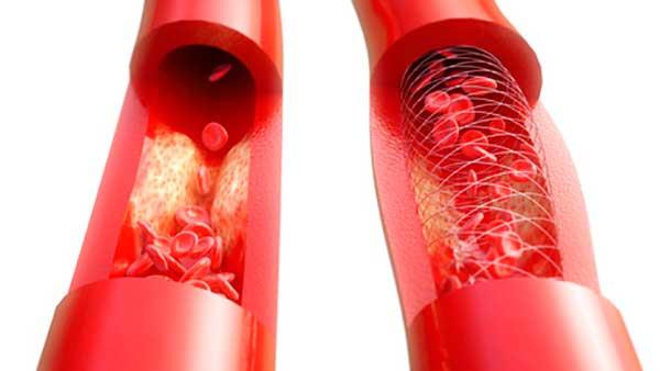 Hipertensión y disfunción eréctil Boston Medical Group España