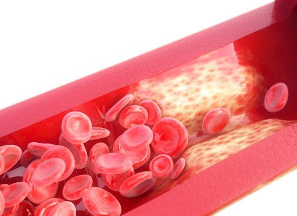 Diabetes y los problemas de erección Boston Medical Group España
