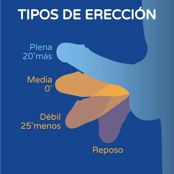 Tipos de erección gráfico Boston Medical Group España