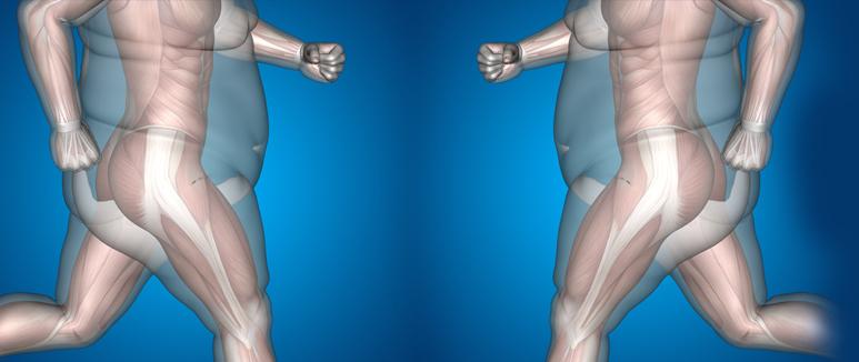 La Grasa abdominal como predictor de los Problemas de Erección Boston Medical Group España